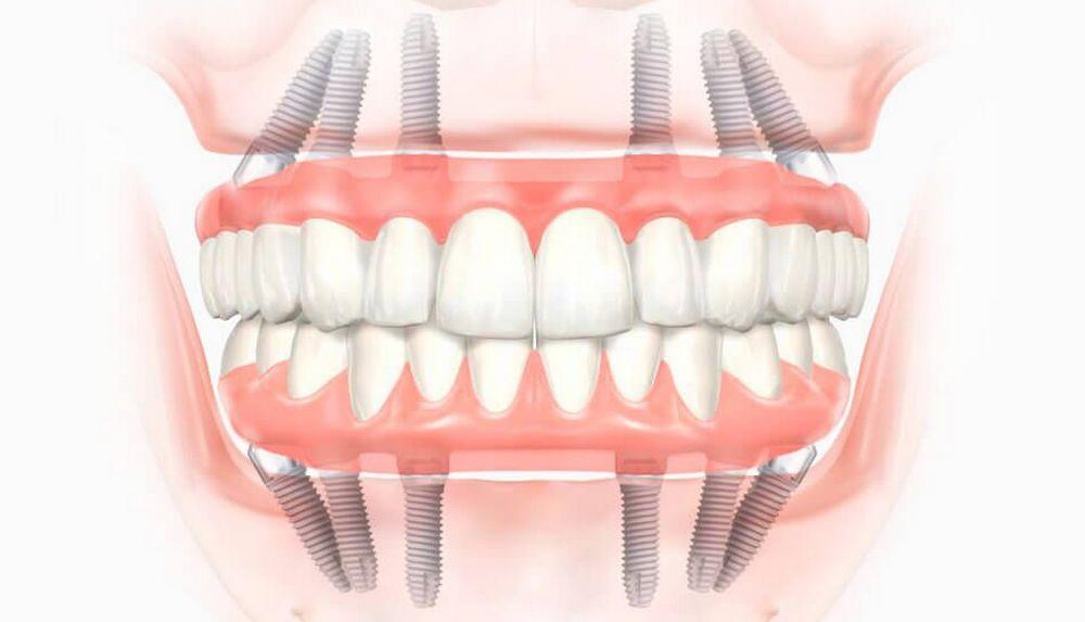 Метод одномоментной имплантации зубов