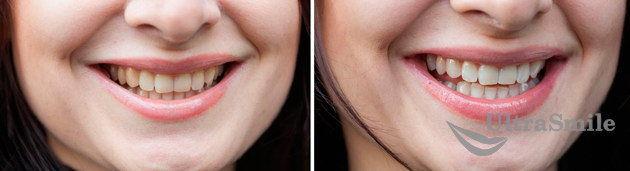 простое отбеливание зубов