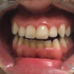 Работа по отбеливанию зубов