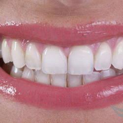 Пример выполненного отбеливания зубов