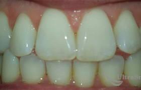Отбеливание потемневших зубов