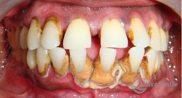 пародонтит-зубной-камень