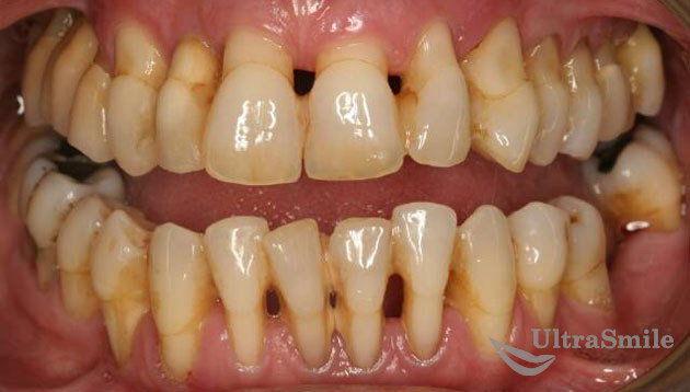 parodontit