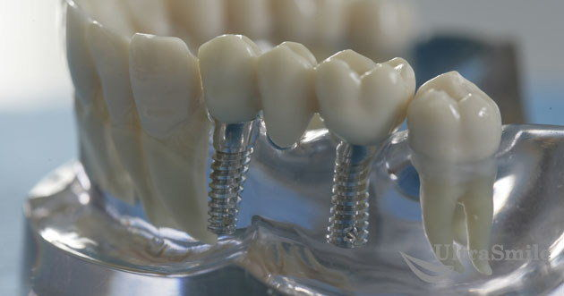 ТОП-6 названий имплантации зубов по протоколу немедленной нагрузки. Как не запутаться?