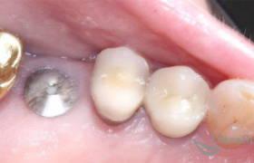 Имплантация жевательного зуба до и после