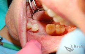 Экспресс имплантации зубов до и после