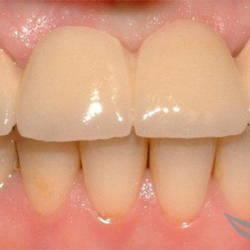 Установка зубного моста до и после