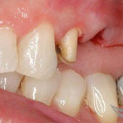 Протезирование зубным мостом до и после