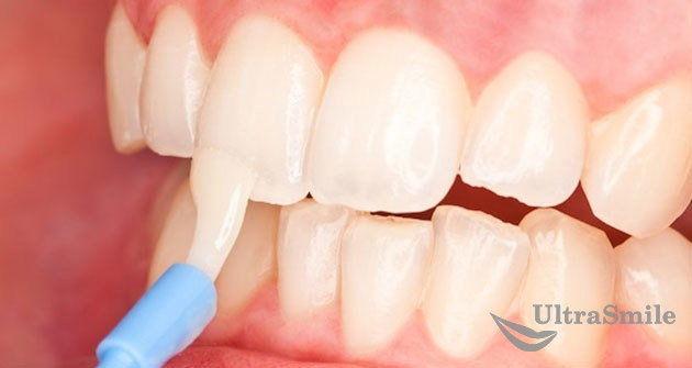 7 советов, как сохранить зубную эмаль