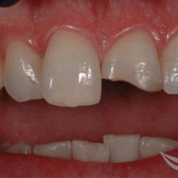 Реставрация переднего зуба
