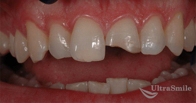 стоимость винира на 1 зуб