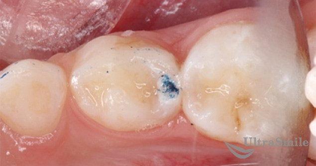 Лечение кариеса между зубов