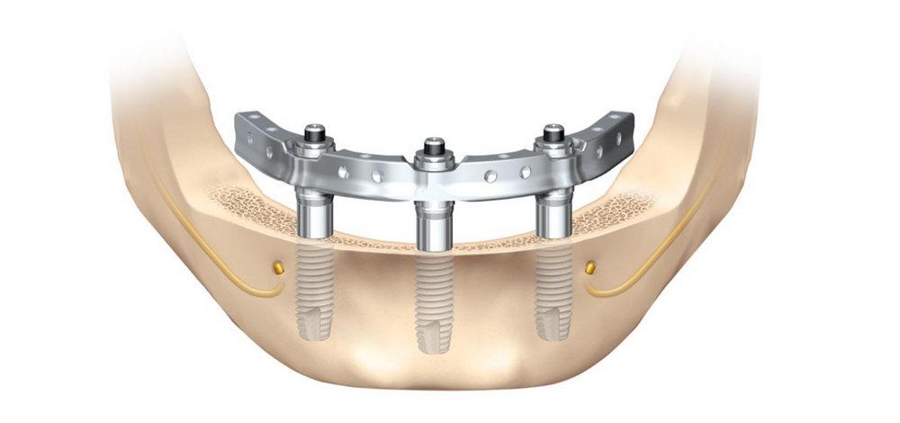 Восстановление всех зубов методом All-on-3