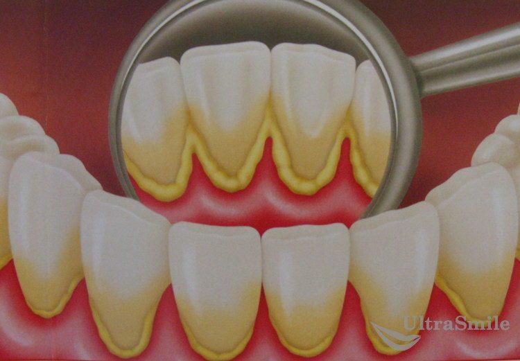 4 способа избавиться от зубного налета в домашних условиях