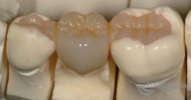 Адгезивный-зубной-мост
