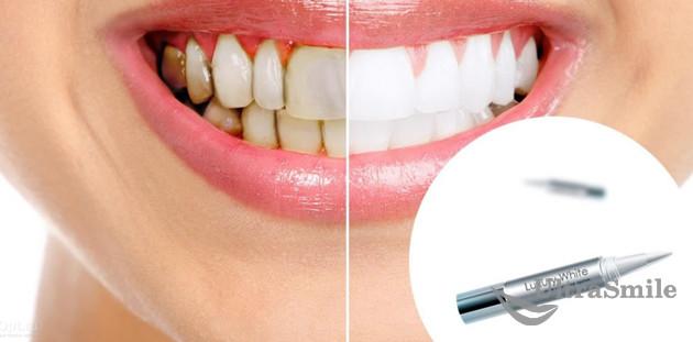 Отбеливание зубов виды и способы