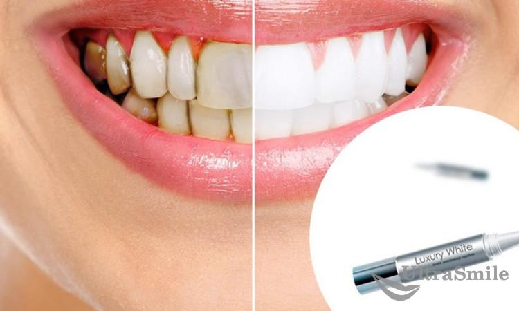 Фломастер для отбеливания зубов как пользоваться