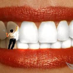 Отбеливания-зубов