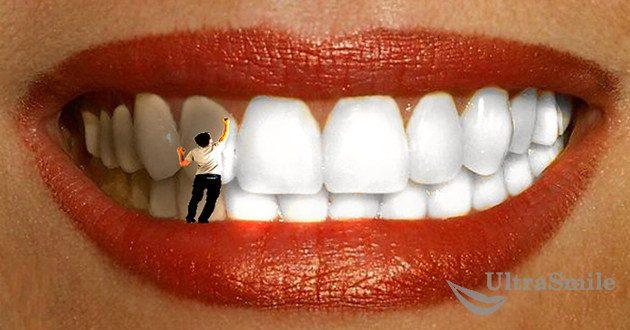 Отбеливание зуба изнутри. Показания и противопоказания.