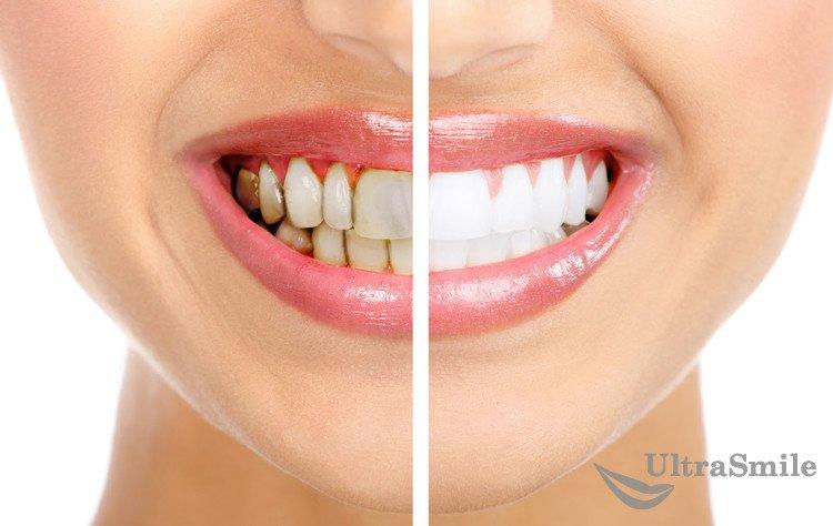 6 методов удаления зубного налета