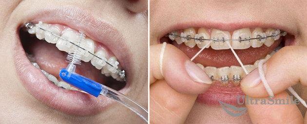 ершик-и-зубная-нить