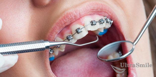 осмотр-у-стоматолога-брекеты