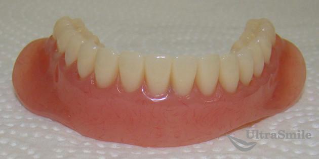 Протезы нижних зубов