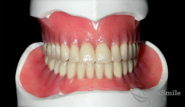 протезирования верхней и нижней челюсти