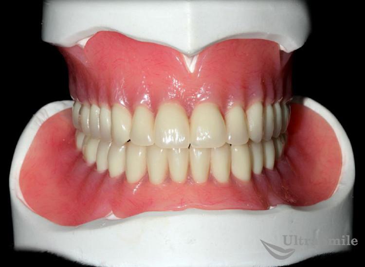 Особенности полного протезирования верхней и нижней челюсти