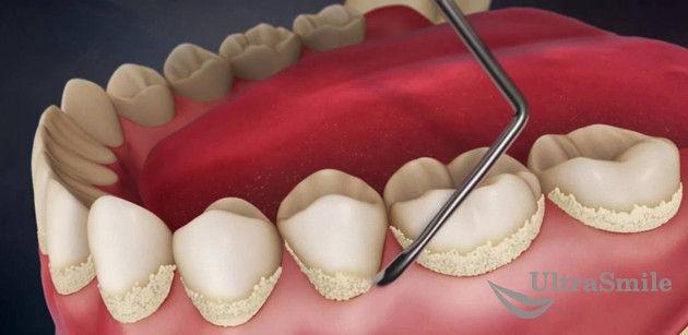 Ручное удаление зубного налета и камня