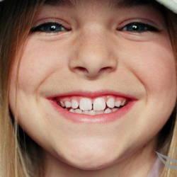 улыбка-ребенок