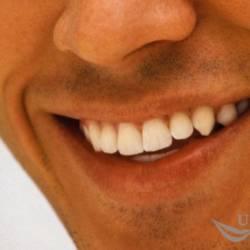 улыбка-реставрация