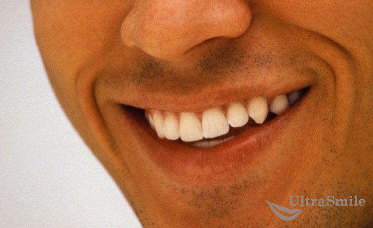 Как художественной реставрацией выравнивают зубы