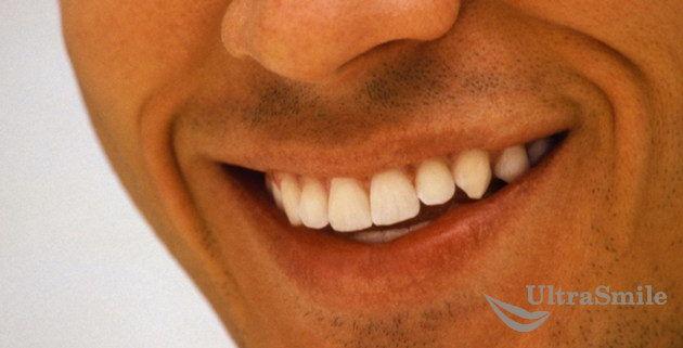 улыбка-реставрация зубов