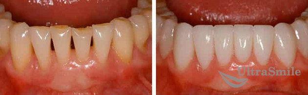 виниры на зубых до и после