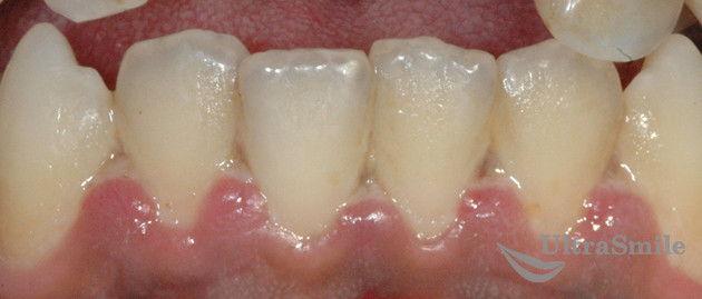 зубной-налет-белый