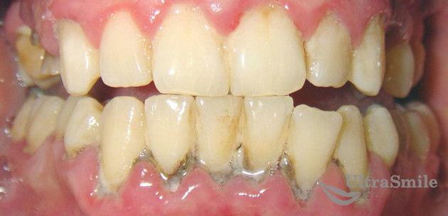 зубной-налет-зеленый