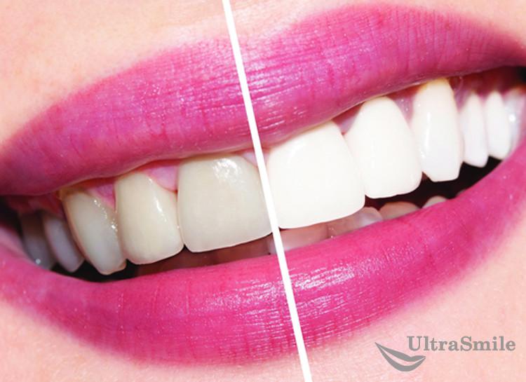 Фотоотбеливание зубов: методы и их эффективность