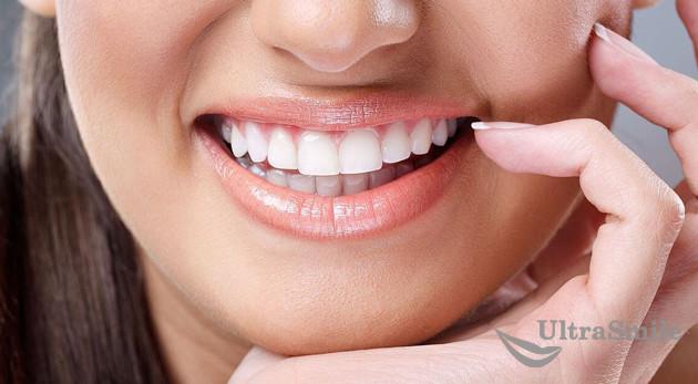 виниры на зубы самара