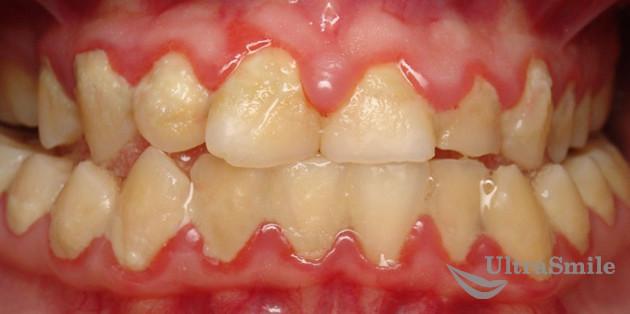 Гингивит и зубной налет