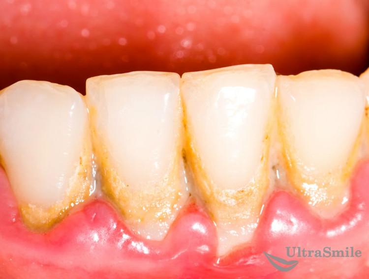 ТОП-5 проблем, к которым приводит зубной налет