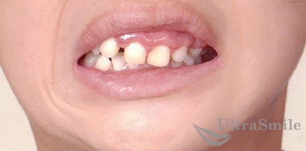 Неправильное положение зубов у ребенка