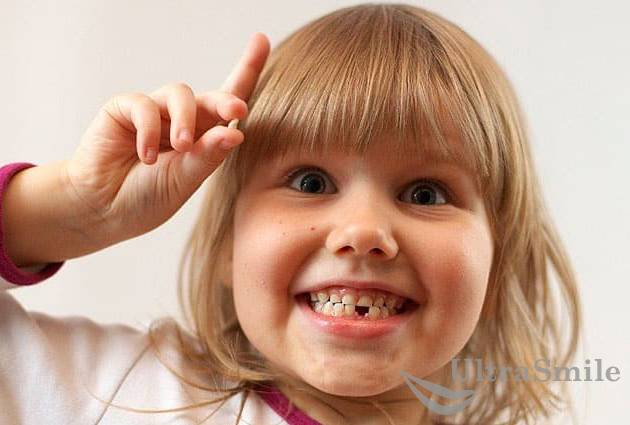 Ребенок после удаления зуба