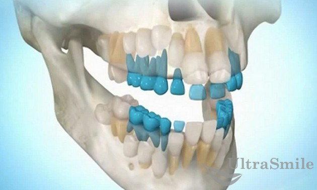 Смена молочных зубов на постоянные - удаление молочных зубов