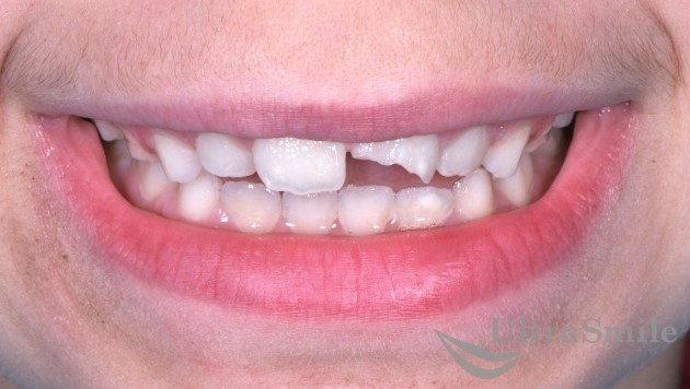 Травма зуба
