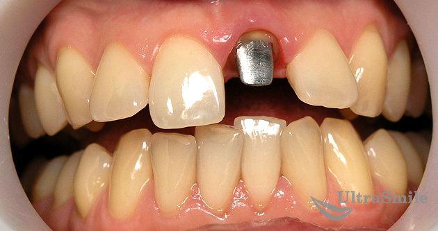 Культевая вкладка на переднем зубе