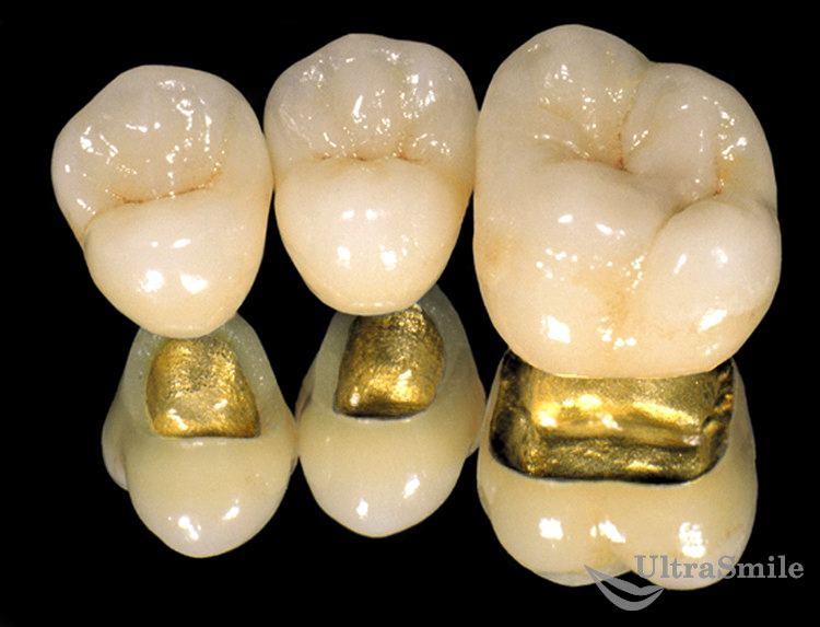 Можно ли на живой зуб ставить коронку