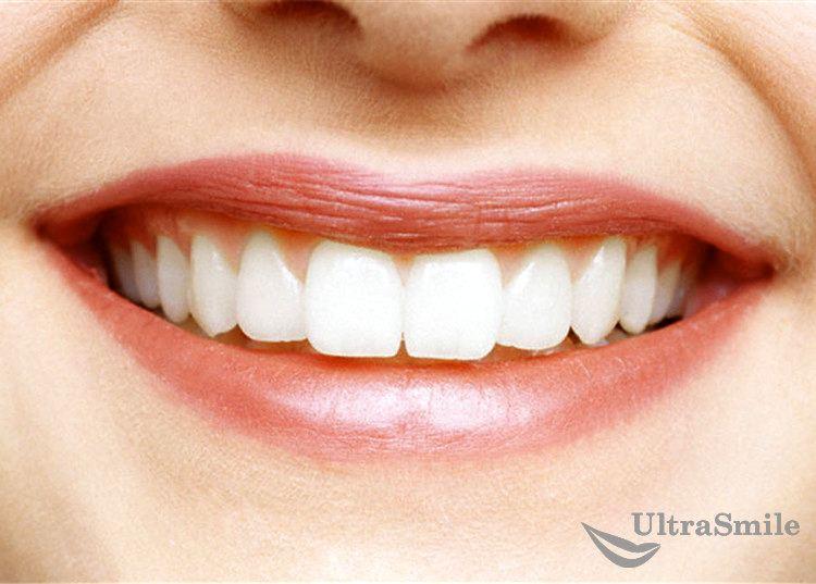 3 лучших материала для коронок на передние зубы