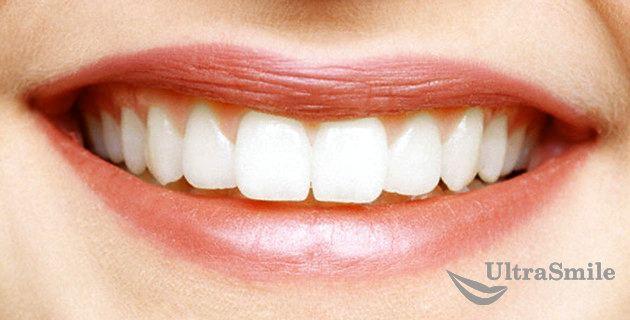 Красивая улыбка - залог успеха