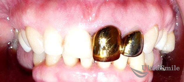 Золотые коронки на передние зубы